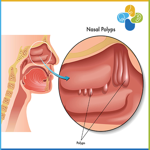 Polypodes Rinos – Ti Einai Kai Pos Antimetopizontai