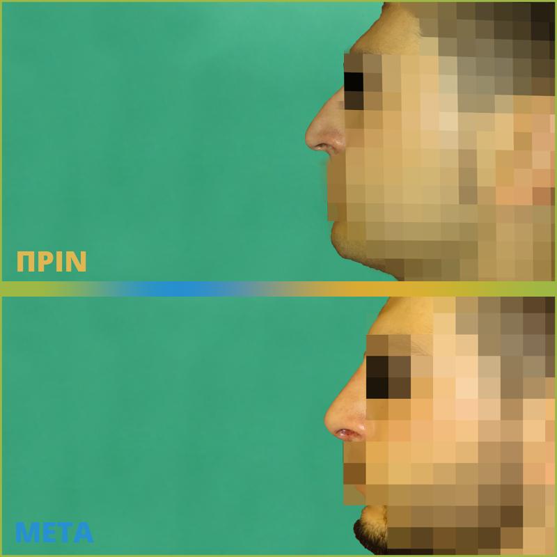 Ρινοπλαστική: Εικόνες πριν και μετά