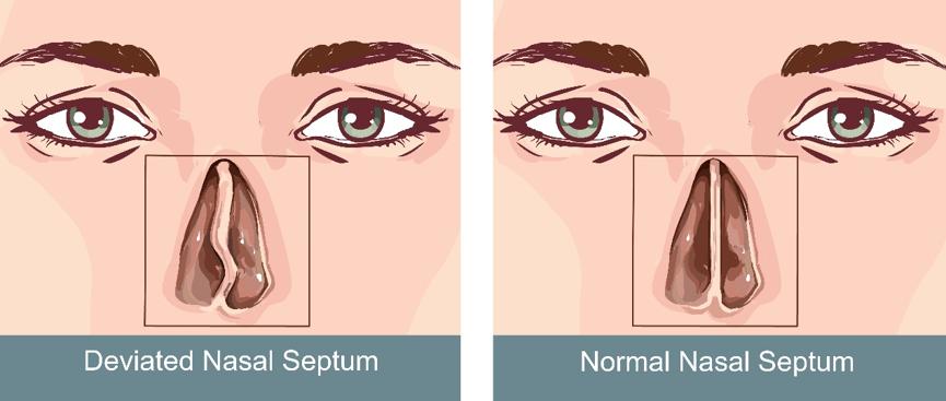 Διάφραγμα μύτης